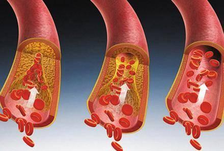 哪些人需要定期检查血脂?